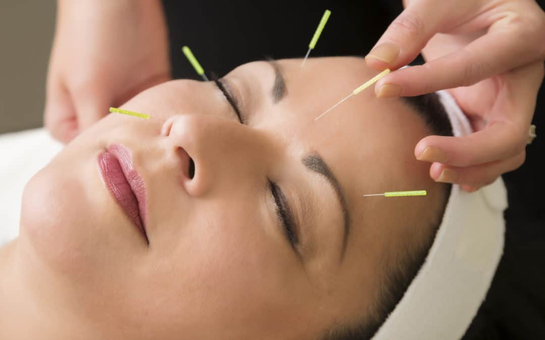 Getting to the Point of Acupuncture