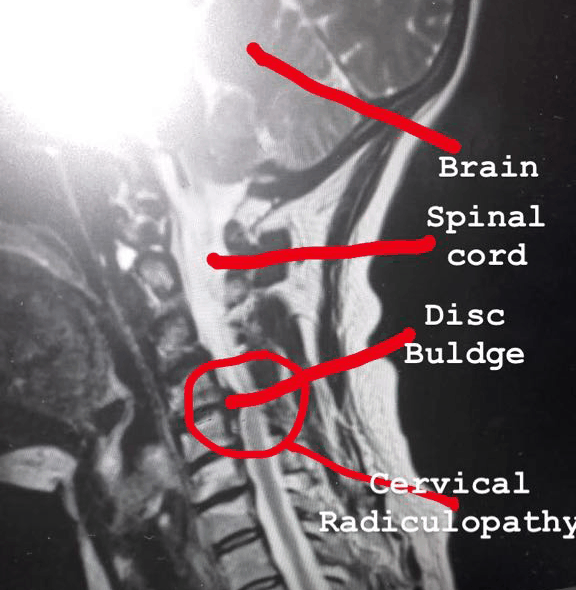 Amazing Recovery Received at CostaSpine for BAD Cervical Disc Buldge!!